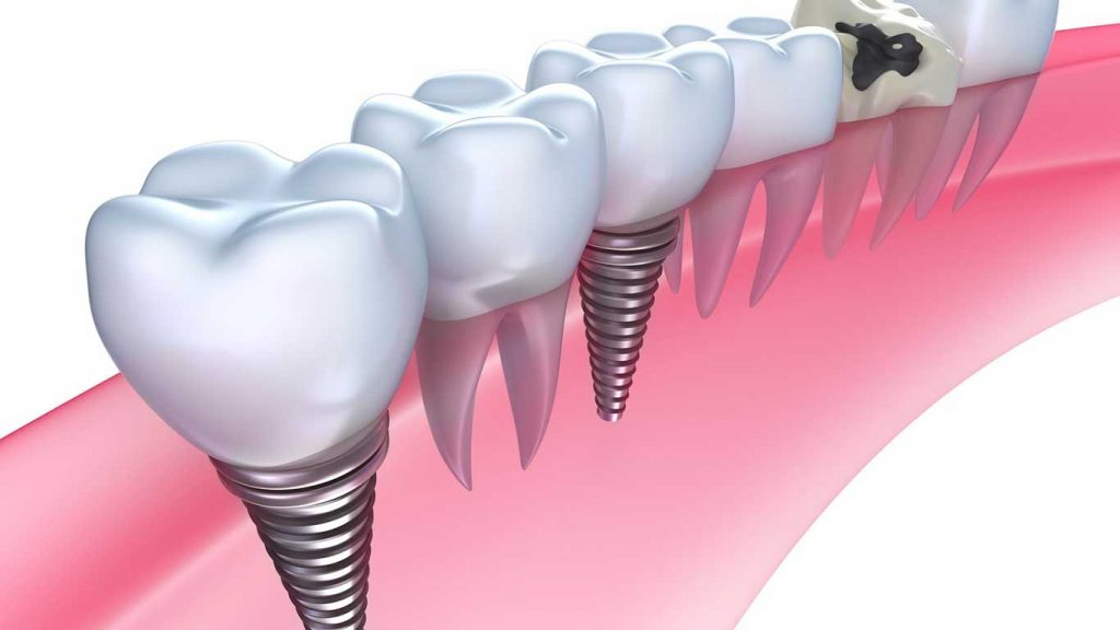 candidate for dental implants