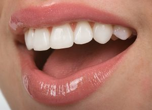 teeth whitening turlock, ca