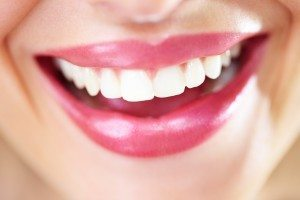 porcelain veneers facts